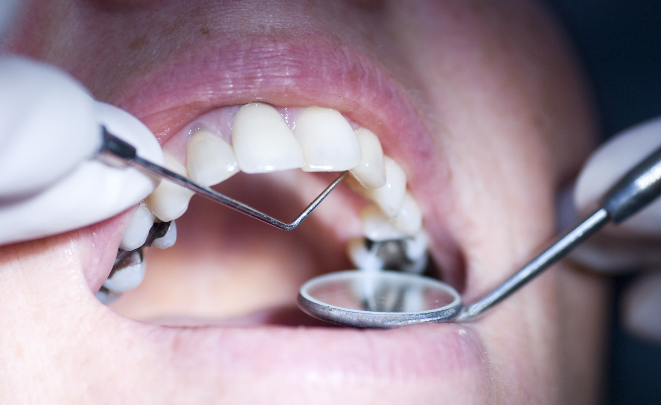 Close up of mouth getting dental exam